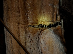 fratura de la columna, vista de más cerca